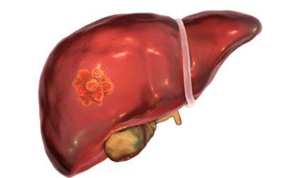 Científicos galegos conseguen reducir nun 80% a metástase no fígado do cancro de colon